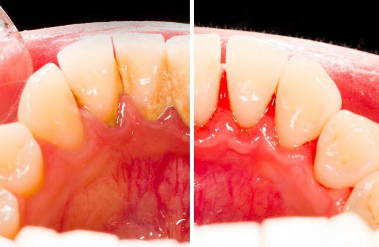 Detartrajul dentar efectuat în Iași ajută la descoperirea cariilor